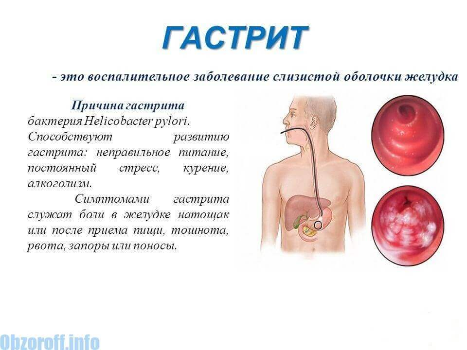1 fokú magas vérnyomás kezelése másodlagos magas vérnyomás elleni gyógyszerek